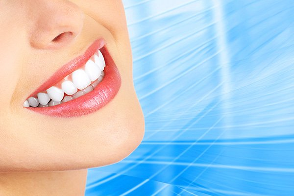 Should I Have My Teeth Cleaned Before Professional Teeth Whitening?